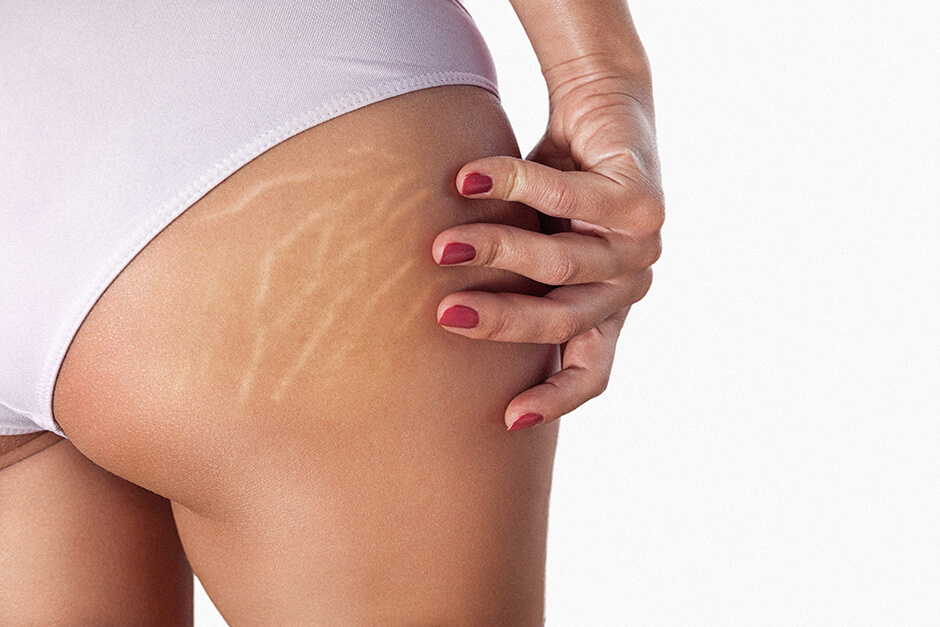 Photo Example before the use of Remove stretch marks Retouching Feature